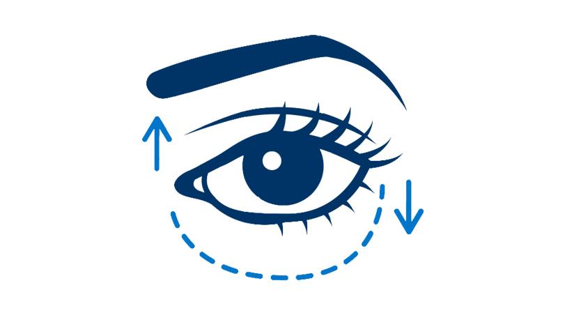 Oculoplastics FAQs