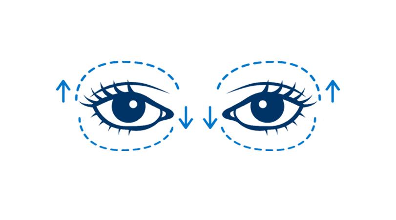 Blepharoplasty (Four Eyelids)