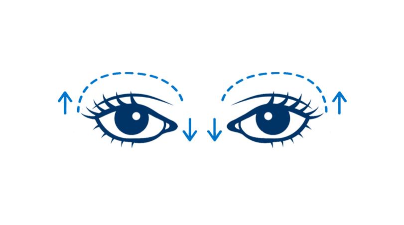 Upper Blepharoplasty (Both Eyes)