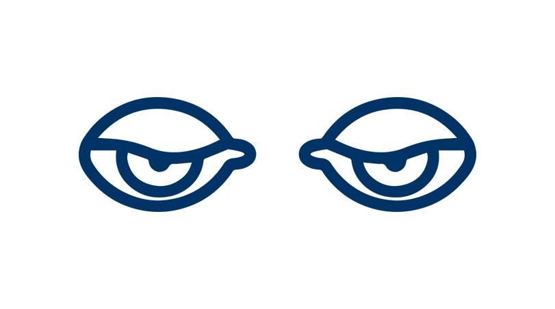 Simple Ptosis (Both Eyes)
